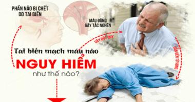 Mẹo hay sơ cứu người bị đột quỵ và tai biến tại nhà