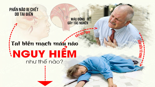mẹo hay sơ cứu đột qụy tai biến mạch máu não tại nhà